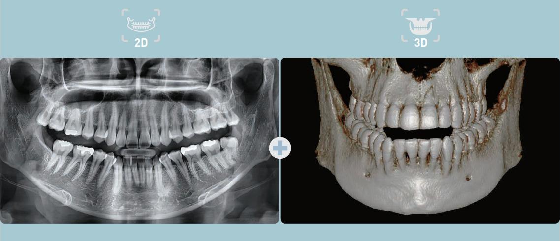 Dentální CBCT Vatech Pax-i3D Smart Plus modality