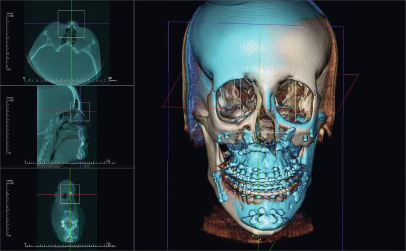Dentální CB CT KaVo OP 3D Vision