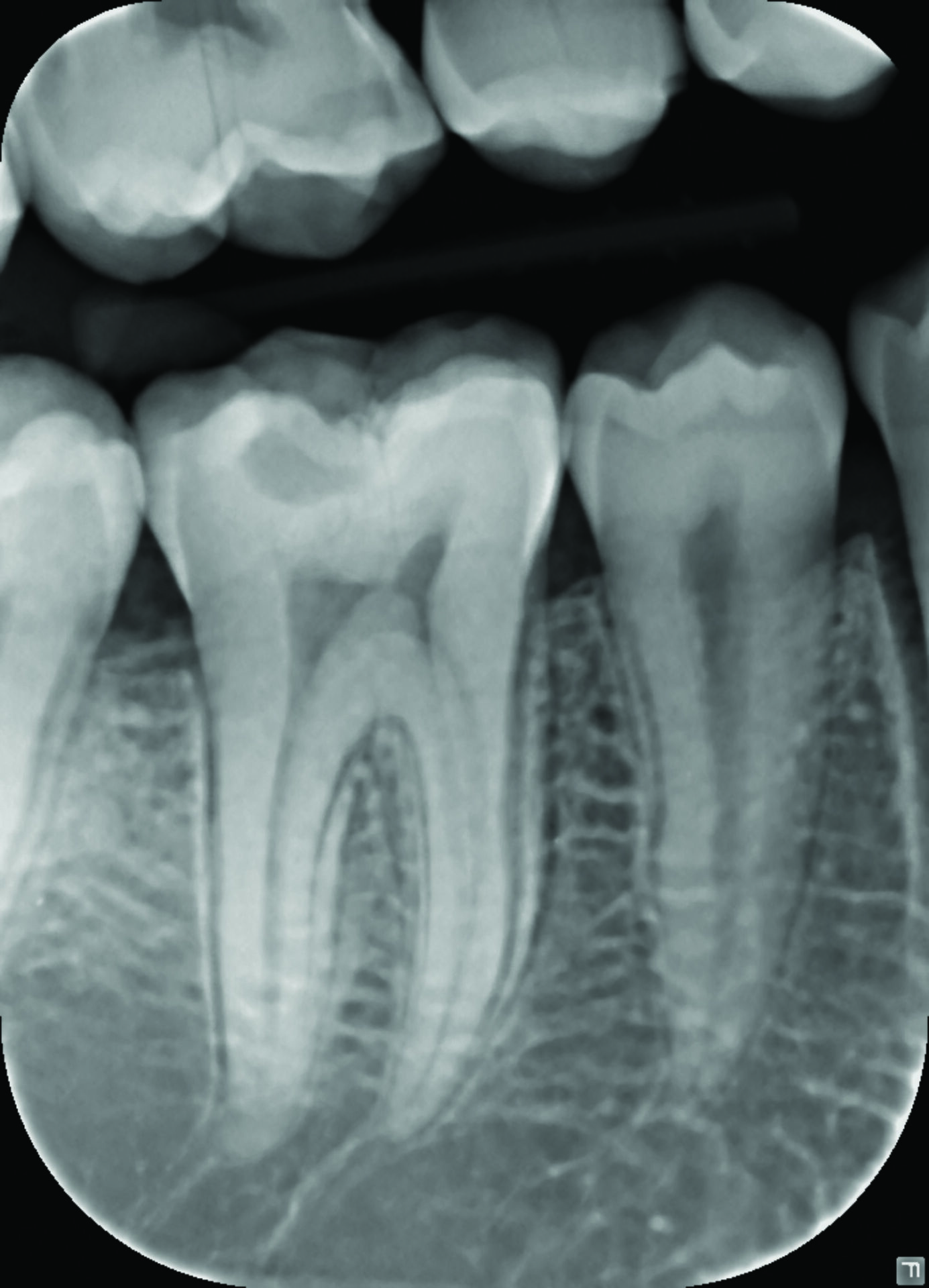 Intraoral X-ray image     PaloDEx Group Oy, Snapshot intraoral sensor (large)     2012-01-09     14:32:54     intra     69a31212-43b7-499b-a7ee-9496f3bf55a3     0     1     CliniView 10.1.0.2     1.2.840.113999.1002.1772294674.1234912183.11769524254126960295     d     0          684     948     7           Snapshot (large)     Intraoral X-ray sensor     Dicc (Dicc.dll 1.6.4)     17     2012-01-09     14:32:54     3200000316486f2d     3200000316486f2d     0     0     V01/PAG=d2954e4a-eb6e-4dd7-97f4-e4291eb35869/STG=d31bd7be-f737-4e12-92b1-ed64b5a3f88d/SEG=3f51f63b-5256-4a37-b337-75d1680a9bf7     110488     0.038     0.038     <Attribute name