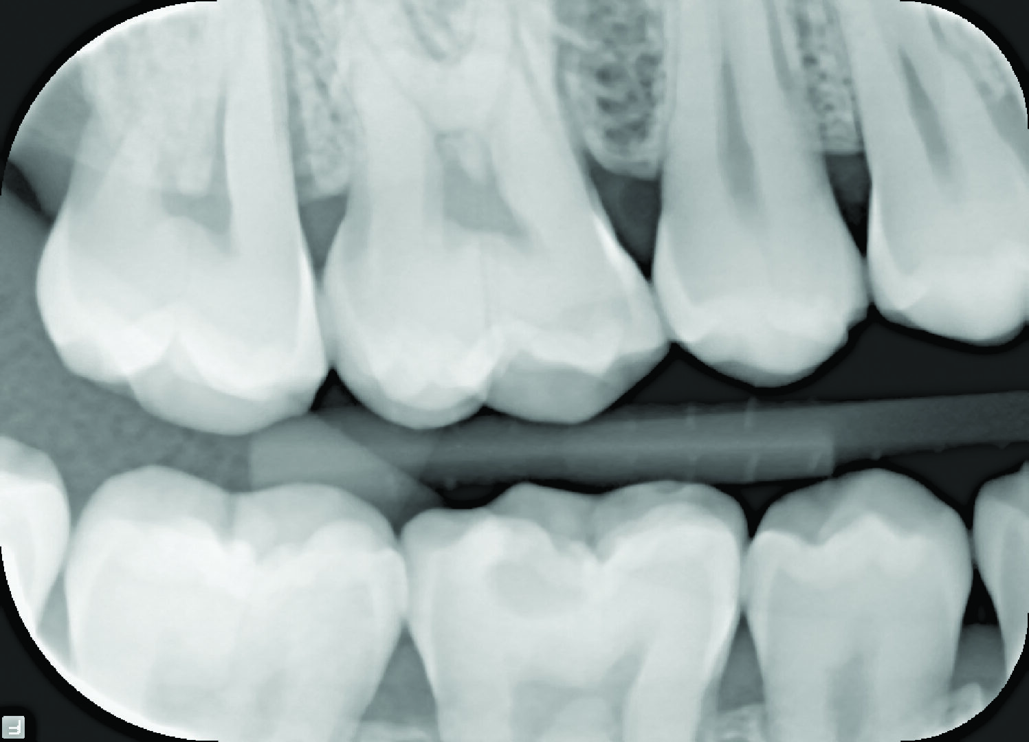 """Intraoral X-ray image     PaloDEx Group Oy, Snapshot intraoral sensor (large)     2012-01-09     14:54:20     intra     0935588c-d8f9-4a08-aace-39408256020b     0     1     CliniView 10.1.0.2     1.2.840.113999.1002.154491020.1242093817.793291601793896106     d     0                                                         948     684     7           Snapshot (large)     Intraoral X-ray sensor     Dicc (Dicc.dll 1.6.4)     17     2012-01-09     14:54:20     3200000316486f2d     3200000316486f2d     0     0     V01/PAG=d2954e4a-eb6e-4dd7-97f4-e4291eb35869/STG=d31bd7be-f737-4e12-92b1-ed64b5a3f88d/SEG=adddcacf-9ecc-4b57-ab13-2b95d30f1fbe     <Attribute name=""""device_seria"""
