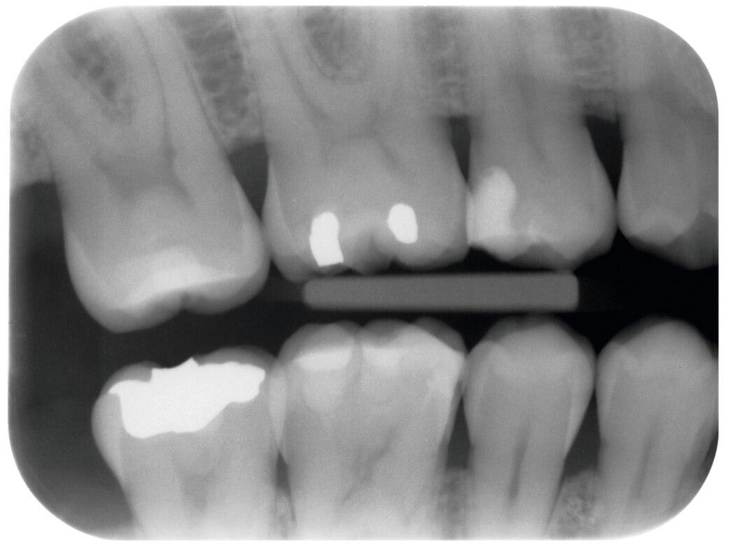 x_ray1b